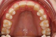 Tandmangel efter behandling