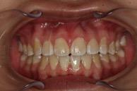 Skæve tænder efter behandling