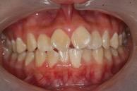 Skæve tænder før behandling